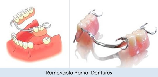 Vincent chen denturespartial dentures in hercules also never try to adjust your dentures yourself you could ruin them so you should always seek assistance from your dentist if they feel uncomfortable or solutioingenieria Image collections